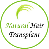 Natural Hair Transplant Chennai